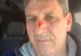Призначений Проданом керівник аеропорту «Чернівці» Кирєєв каже, що його побили біля будинку. Поліція перевіряє інформацію
