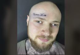 «Кернес живий»: Житель Харкова лазером виводив тату, яке було на лобі