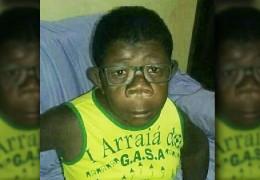 """В Анголі виявили хлопчика, який """"народився від людини та шимпанзе"""": експерти досліджують дитину"""